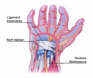 fonte musculaire traitement