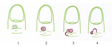 Exemple de technique de lambeau : (1) le kyste (2) kyste enlevé (3) lambeau tourné de 90° (4) résultat