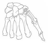 rhizarthrose2